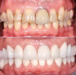 فرصة نادرة: اغتنموا خصوماتنا على عدسات الاسنان اللاصقة( لومينير) وتركيبات الزيركون الاصلية مع الضمان o.jpg