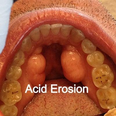It! acid reflux and throat problems terrific start