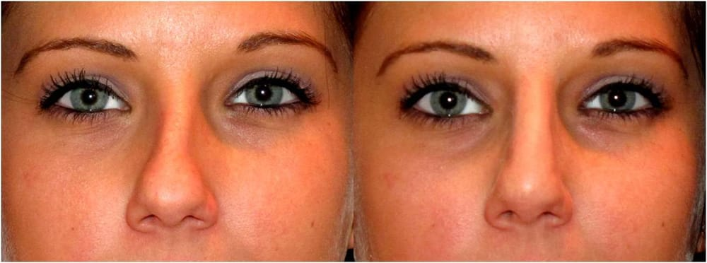 Non Surgical Nose Job Crooked Nose Yelp