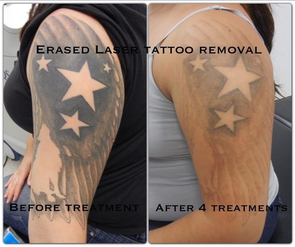 After the 4th treatment erased tattoo removal las vegas for How long is a tattoo removal session
