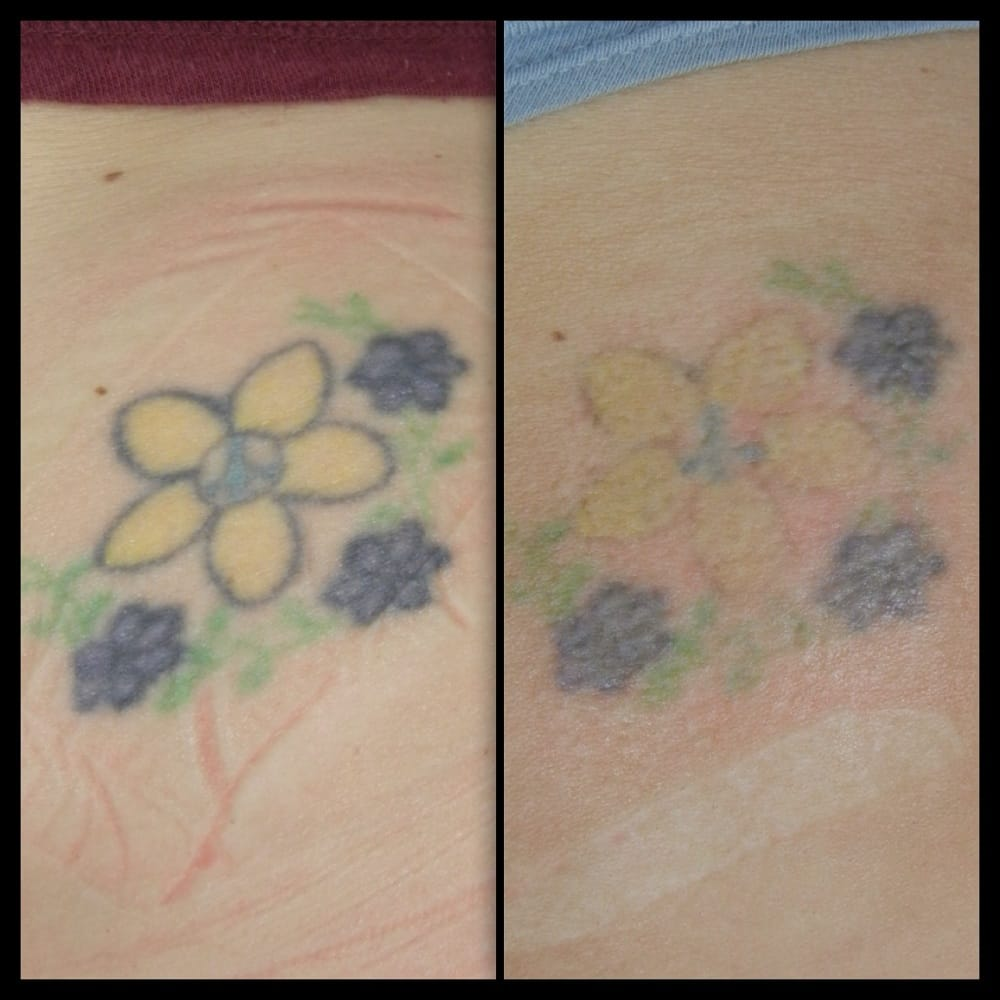 Tattoo Removal Cream Before And After Erased laser tattoo removal