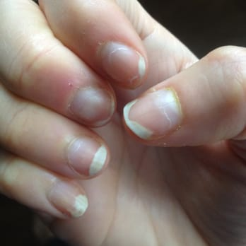 Nails Separating From Nail Bed Beautify Themselves With Sweet