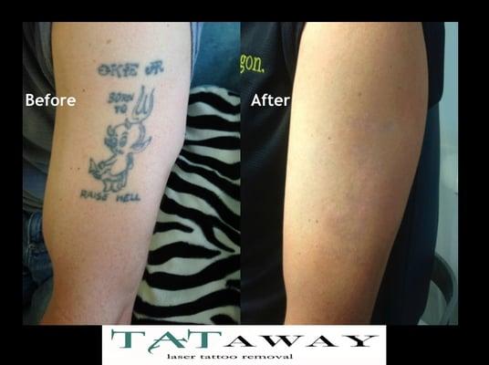 Tataway tattoo removal flatiron new york ny yelp for Picosure tattoo removal michigan